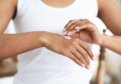 Eczema Treatment. Black Woman Applying Healing Moisturising Cream On Hand Skin