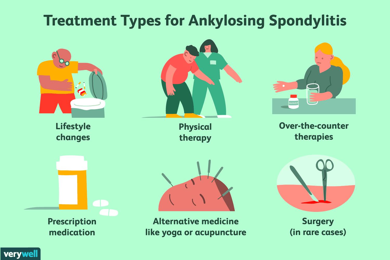 Treatment types for ankylosing spondylitis