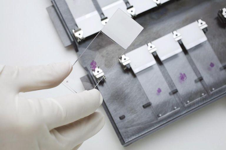scientist handling slides