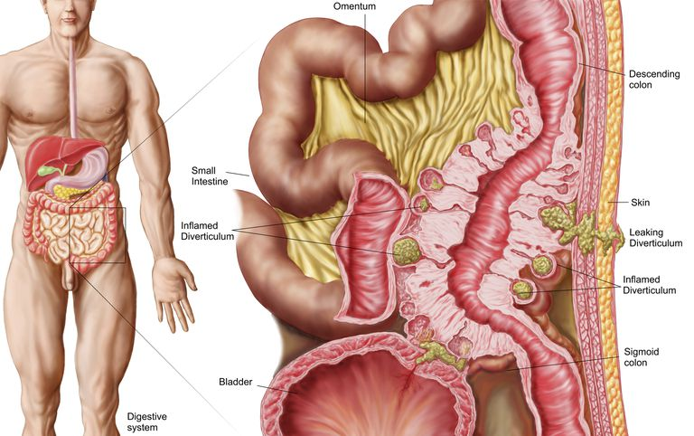 Diverticular Disease Diverticulosis And Diverticulitis