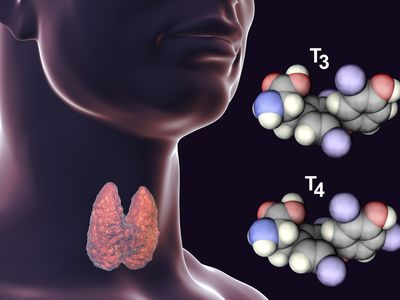 Thyroiditis: When the Thyroid Gland Becomes Inflamed in Thyroidits