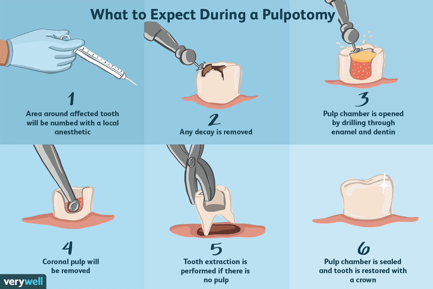 What to expect during pulpotomy