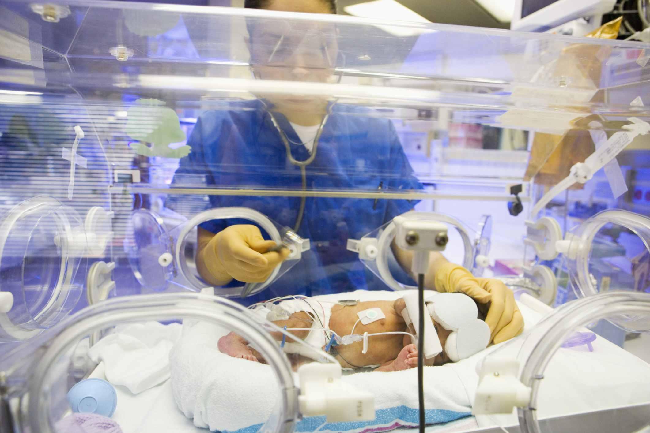 Premature Baby in Incubator NICU Equipment with NICU Nurse