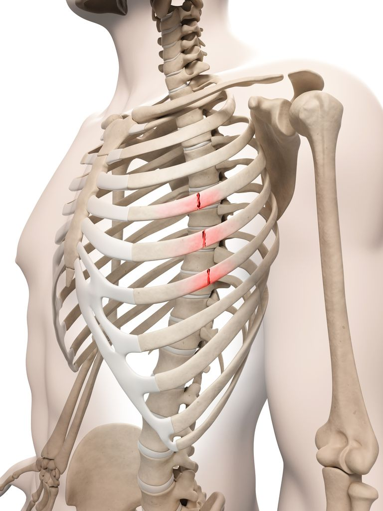 Treatment for Rib Fractures