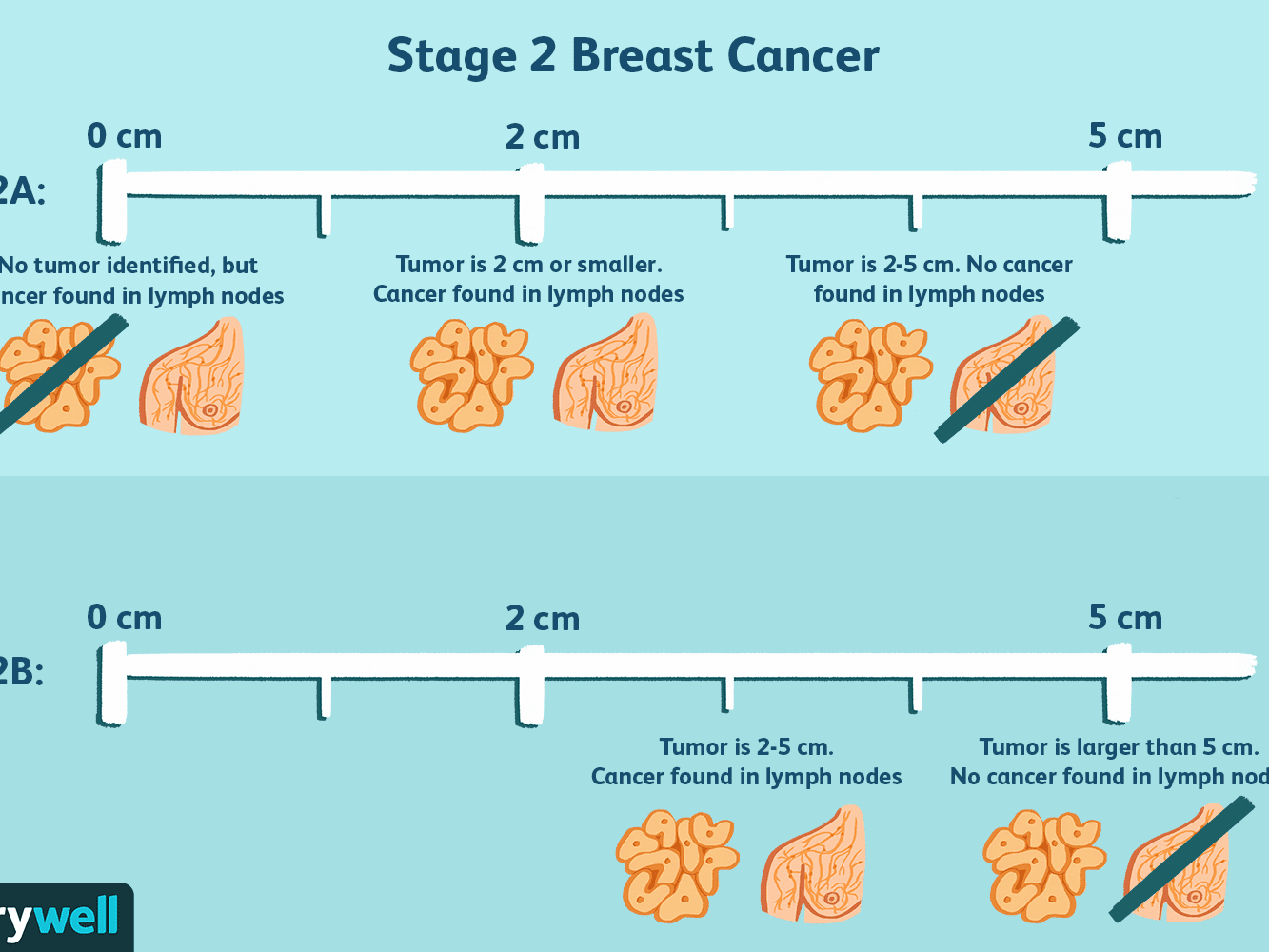 Stage 2 Breast Cancer Diagnosis Treatment Survival