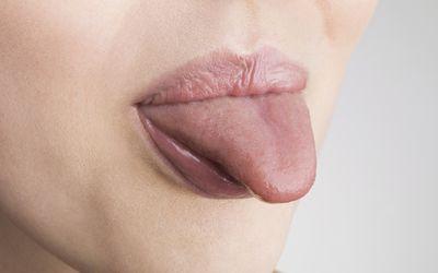 Myofunctional therapy consists of tongue exercises that may help sleep apnea