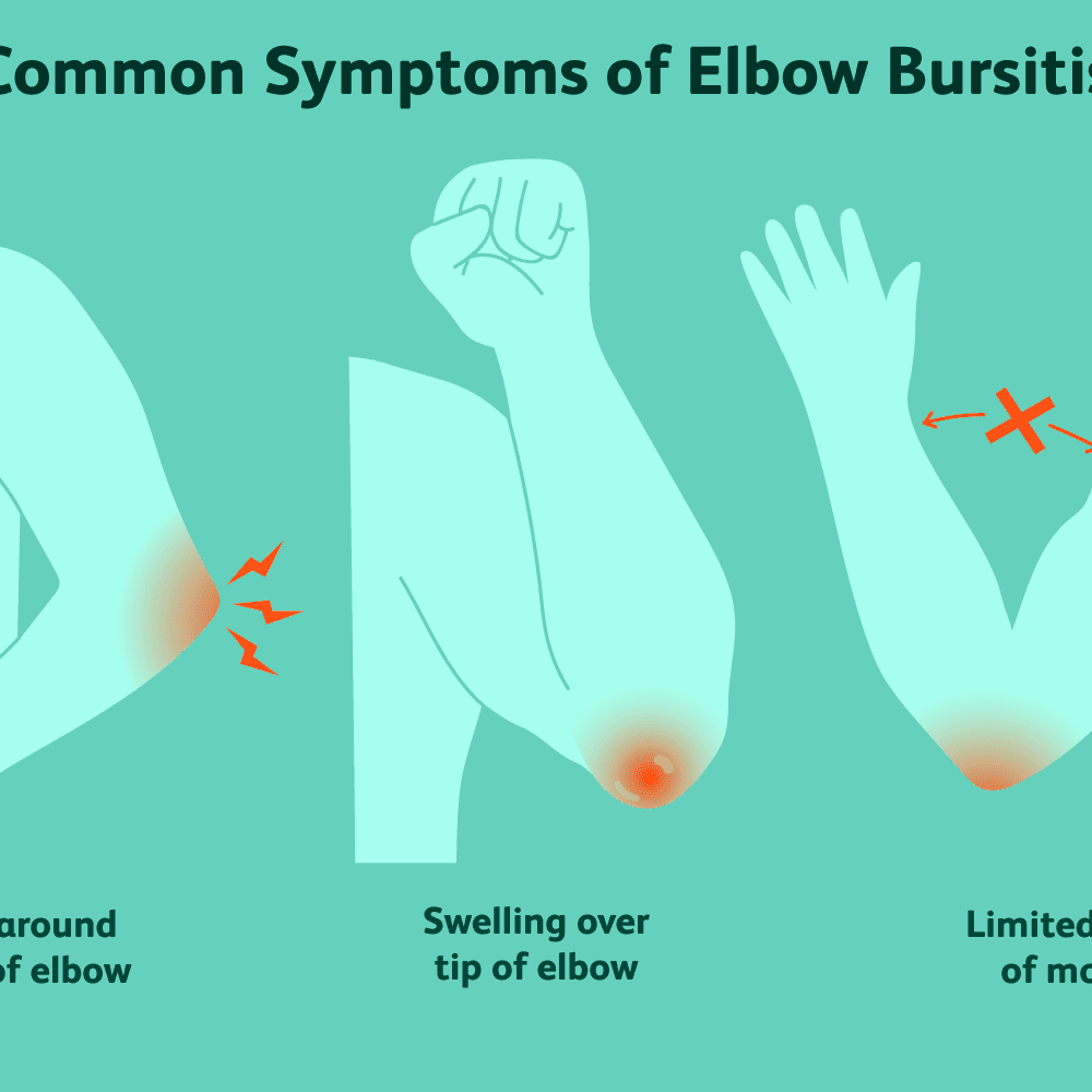 torn bursa elbow