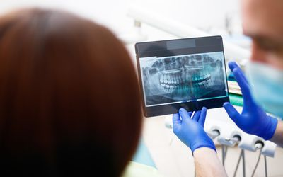 Dentist showing patient an X-ray of the mouth