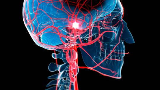 Stroke: Signs, Symptoms, and Complications
