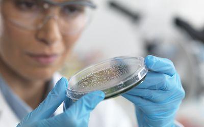 Scientist examining a petri dish