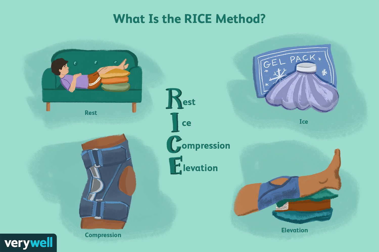 What Is the RICE Method?