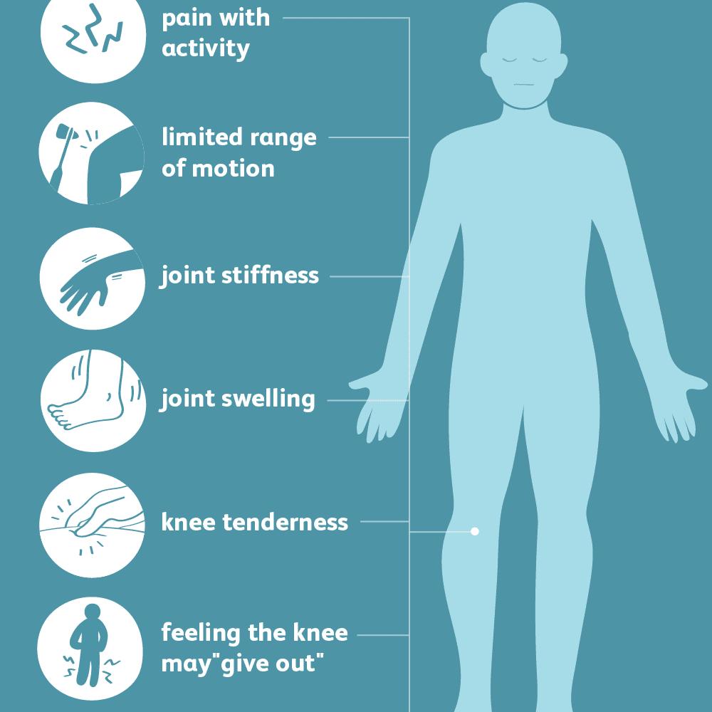 Symptoms of Knee Arthritis