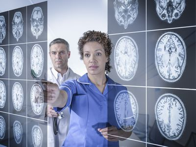 Doctors studying brain scans