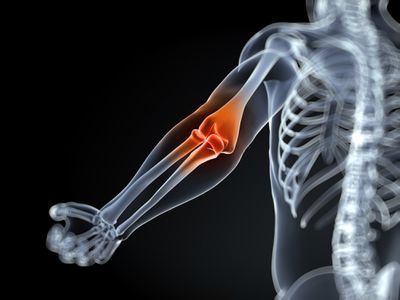 Elbow pain and inflammation.