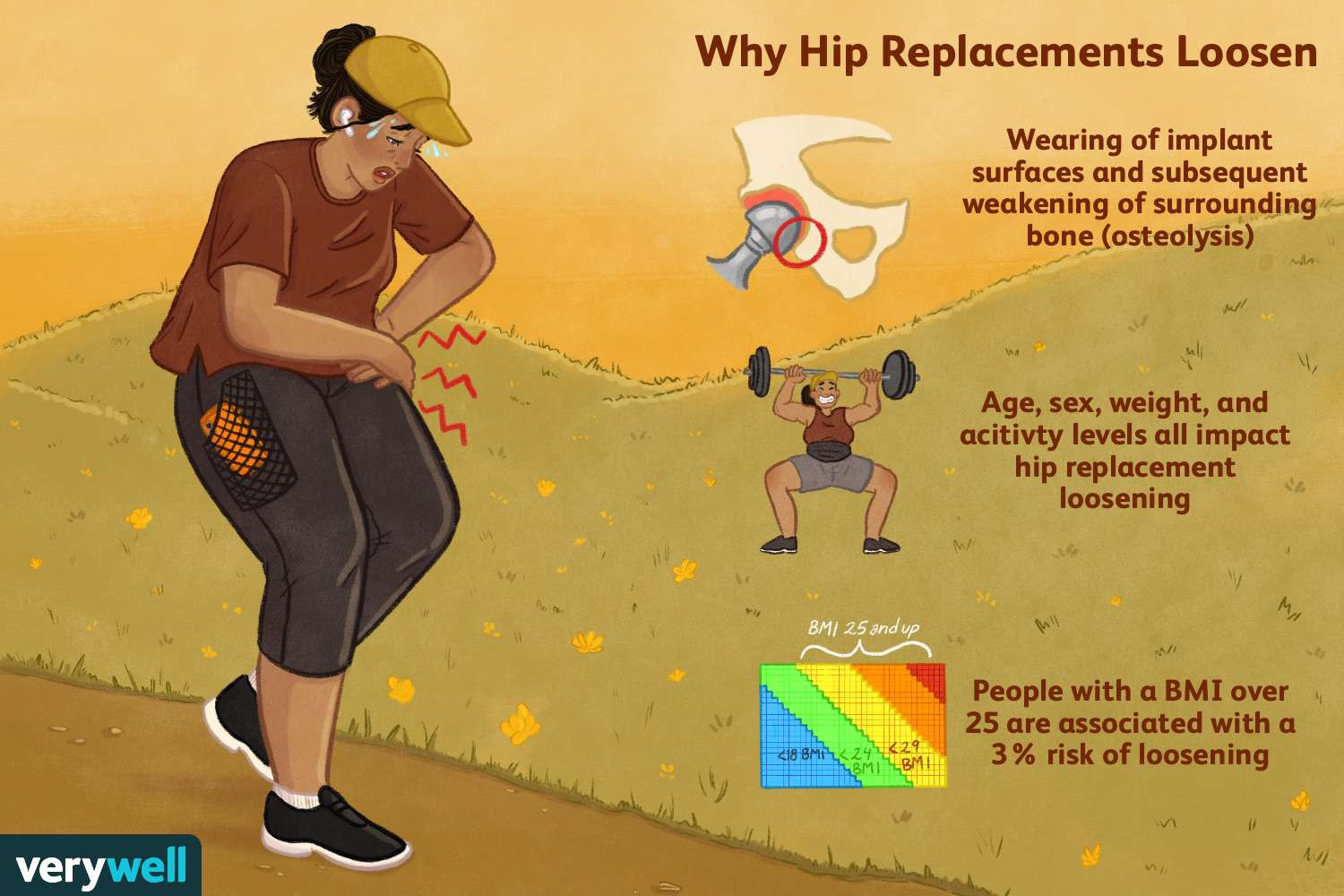 Why hip replacements loosen.