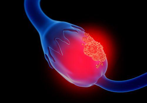 Illustration of ovarian cancer
