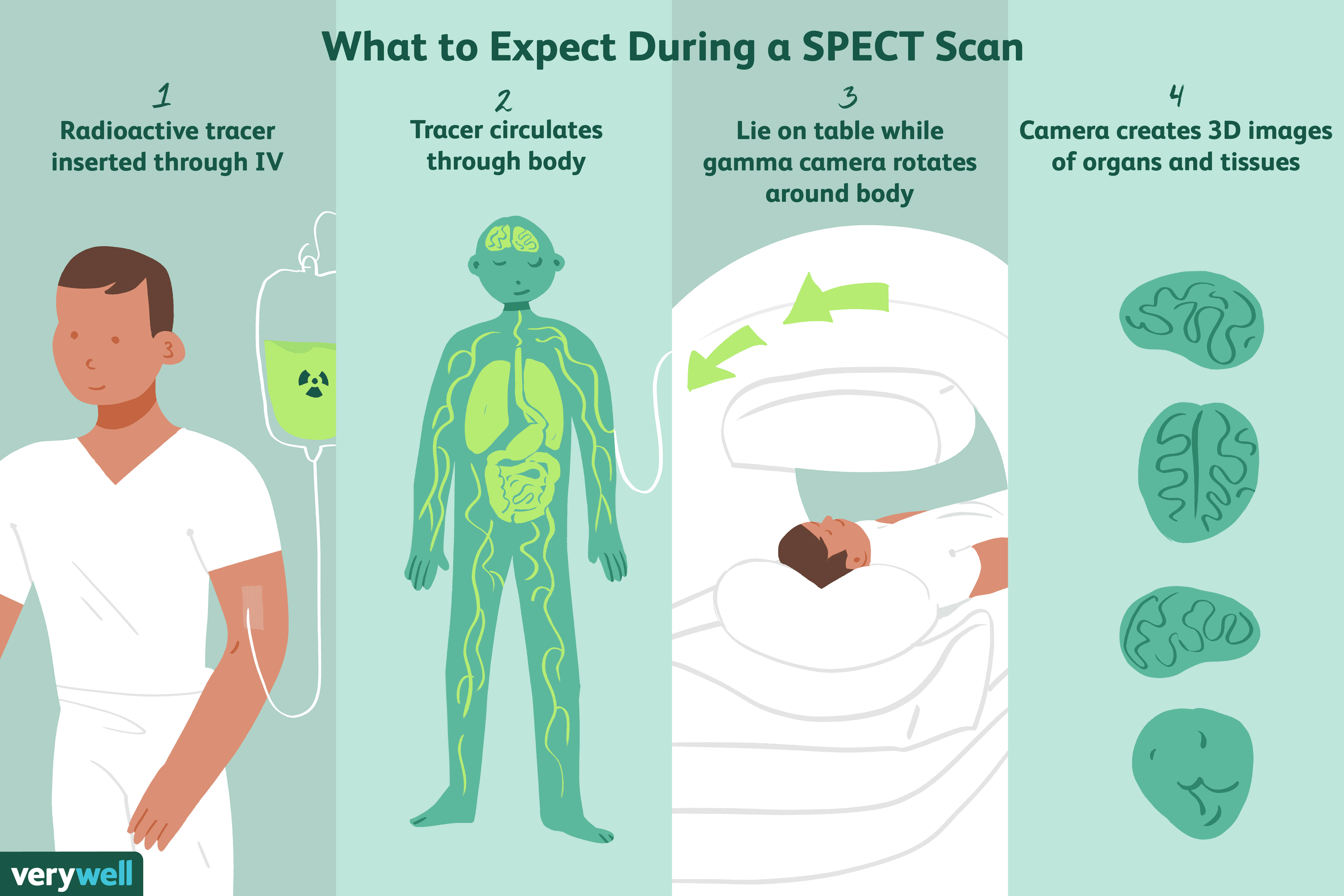 what to expect during a SPECT scan