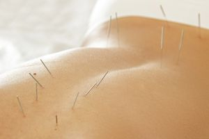 Acupuncture needles in a woman's back