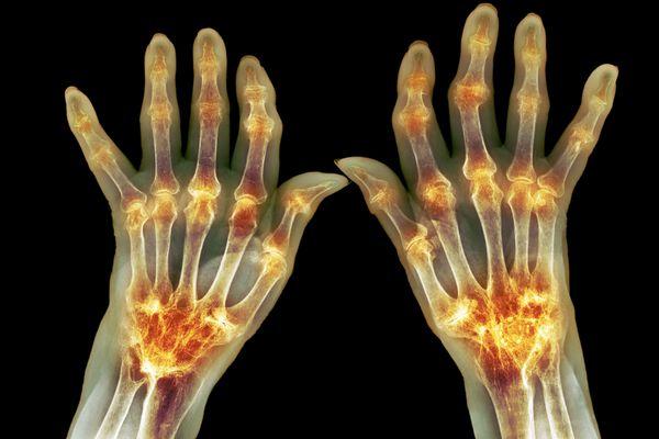Arthritis X-ray