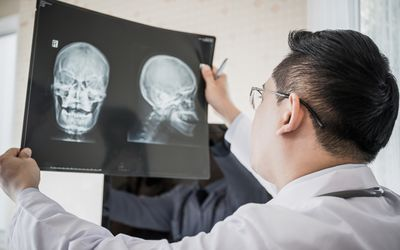 Doctor looking at xray of frontal bone