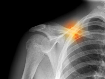 Fractured collarbone, X-ray