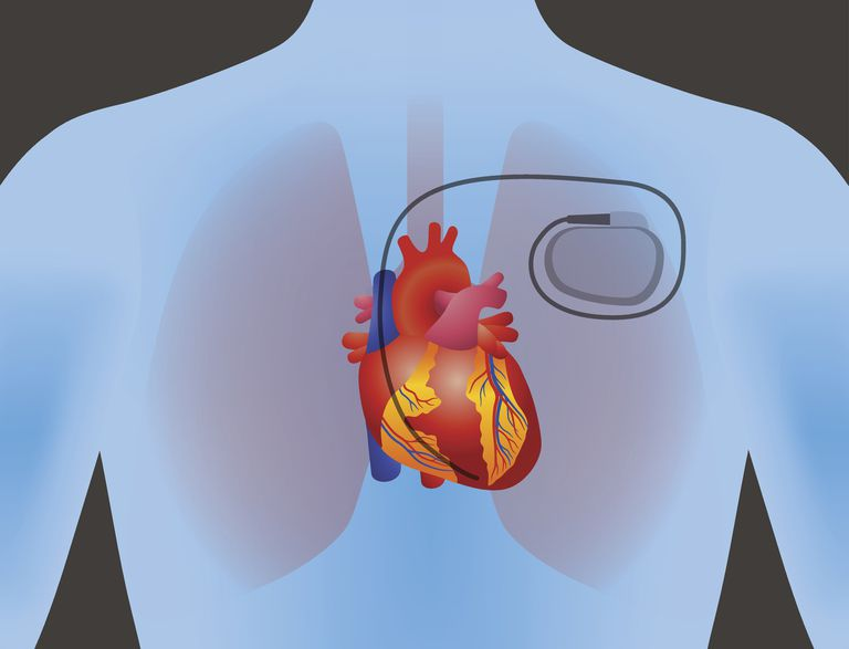 An image of a pacemaker