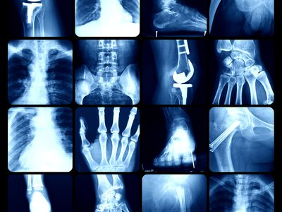 Bone imaging