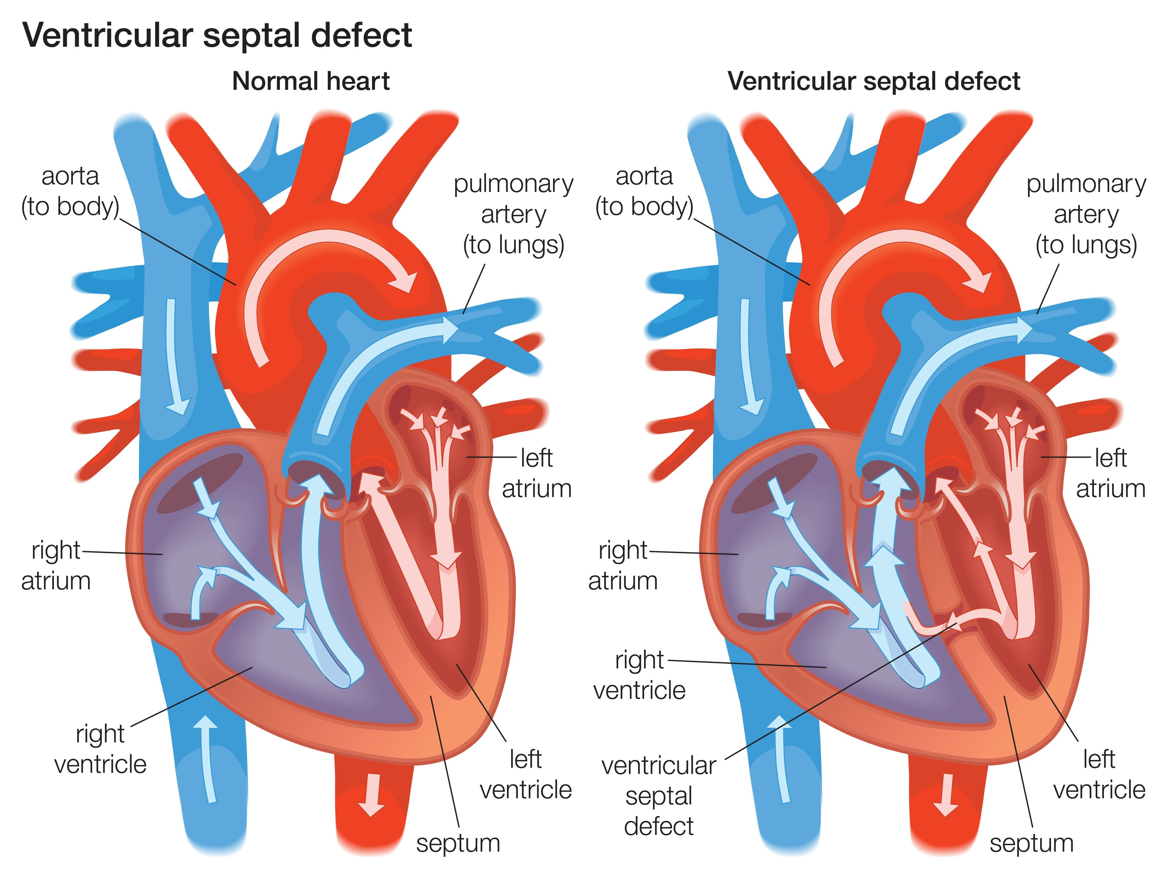 What Are Ventricular Septal Defects