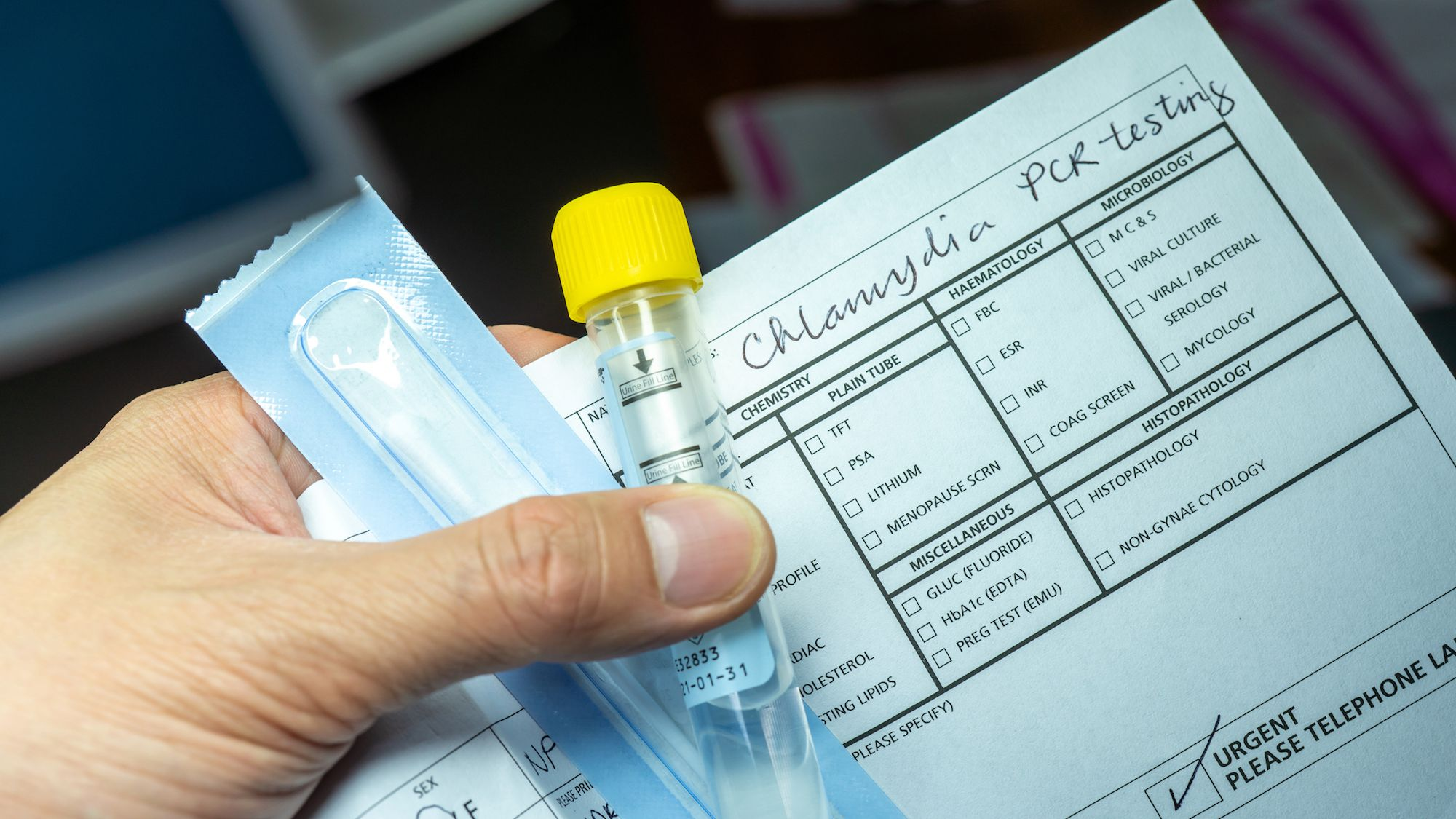 STD Testing and Its Effect on Women