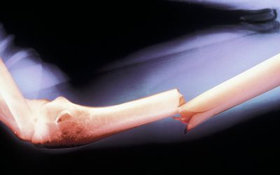 An x-ray of a closed fracture