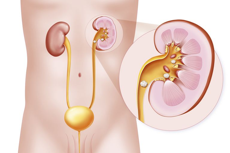 Eswl Treatment For Kidney Stones