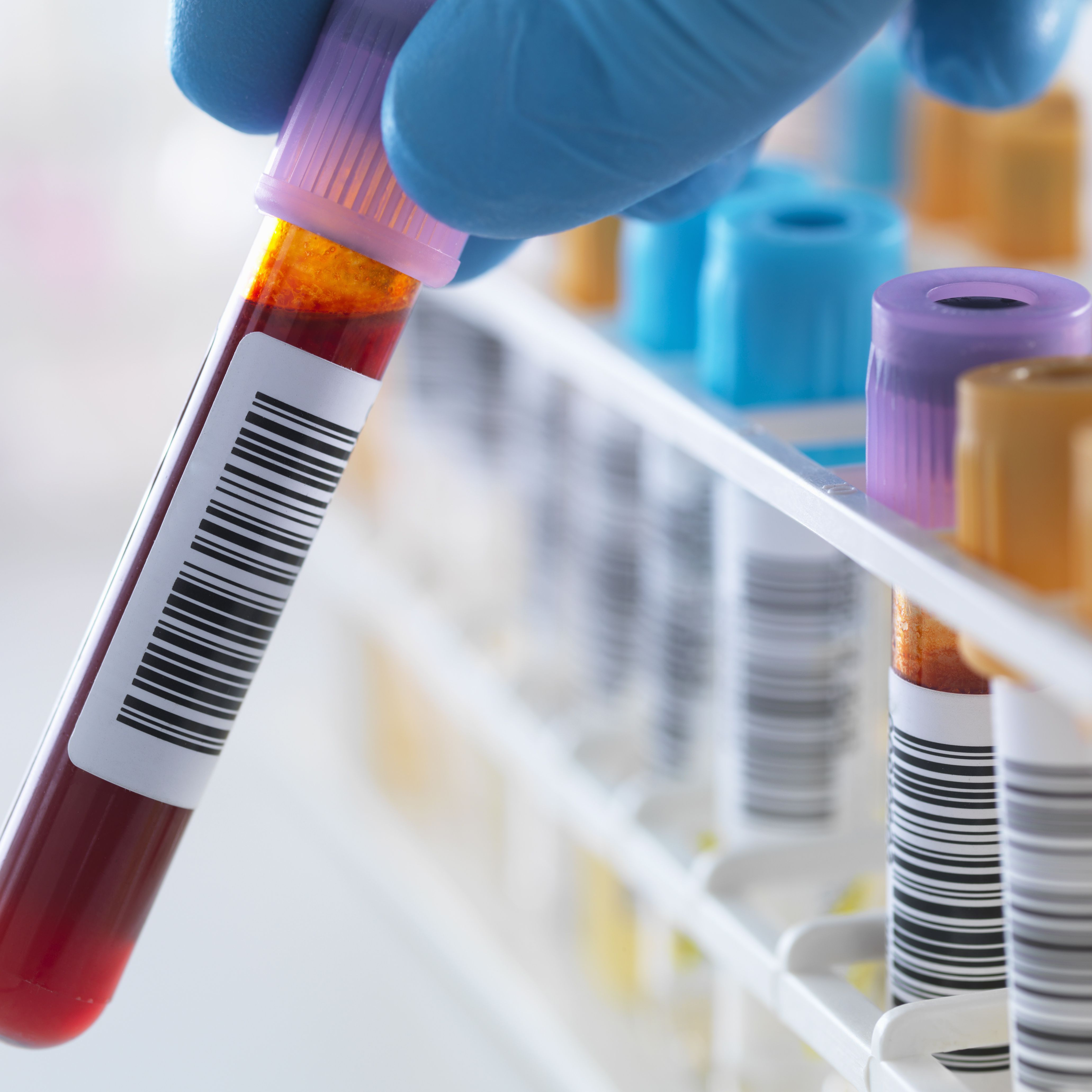 Positive genital false herpes test How Accurate