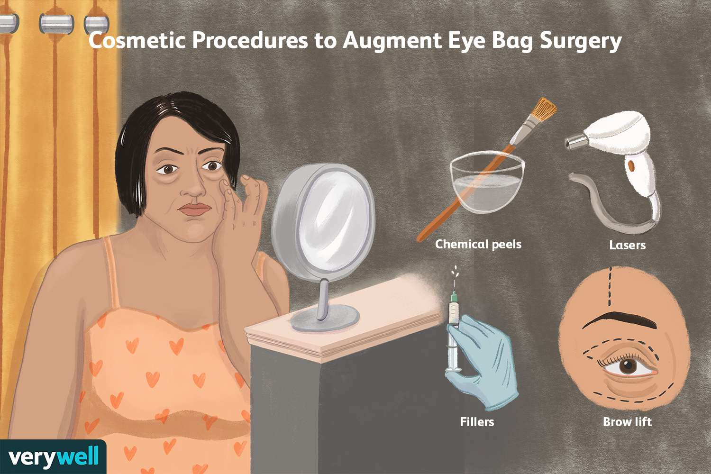 Cosmetic Procedures to Augment Eye Bag Surgery