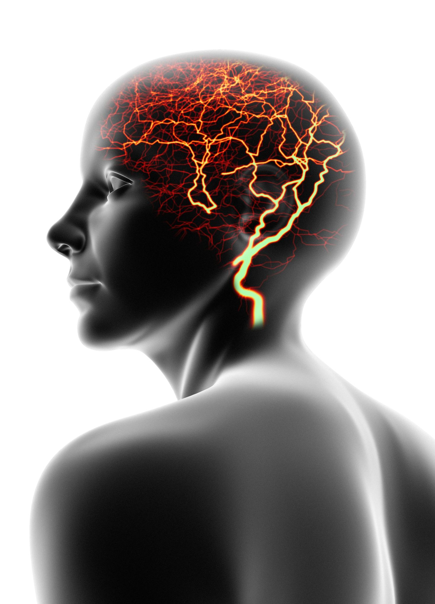 intractable epilepsy symptoms causes and treatment