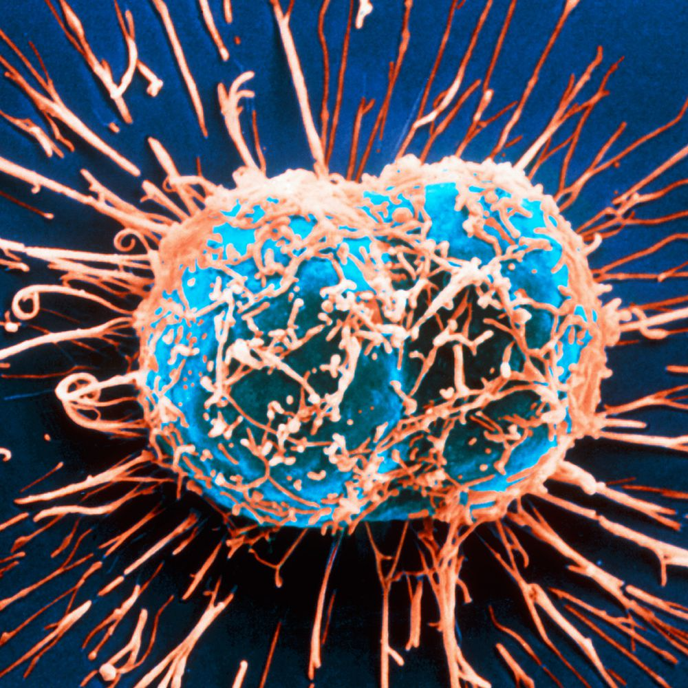 Cervical Cancer Signs, Symptoms, and Complications