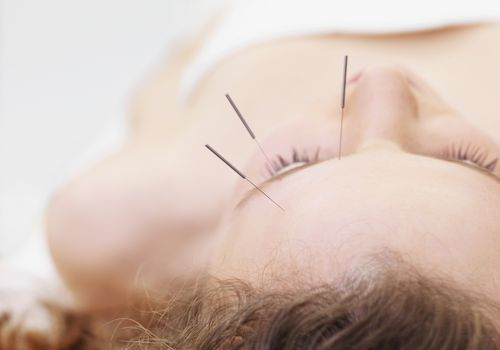 Acupuncture for vision problems