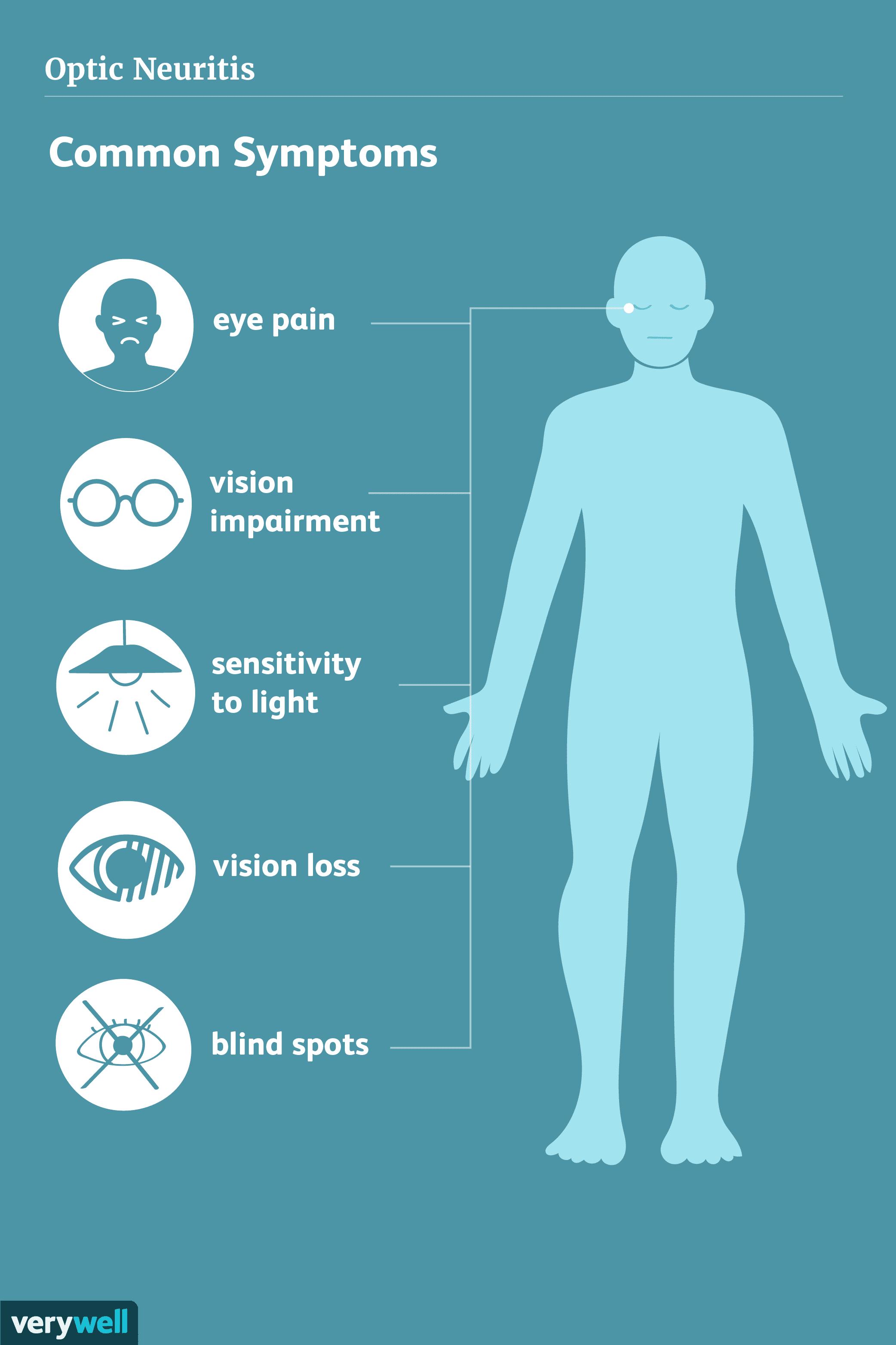 Optic Neuritis Symptoms