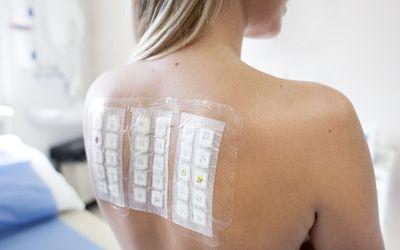 Allergy Test Kit
