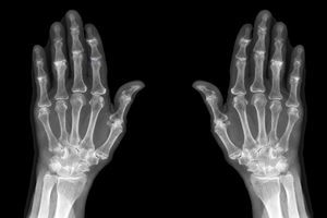 x-ray showing mild osteoarthritis of finger joints