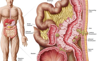 How Diverticulitis Is Diagnosed