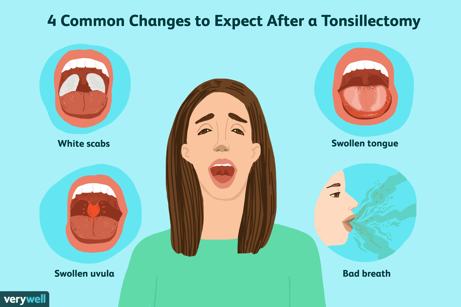 Common Changes After Having Your Tonsils Removed