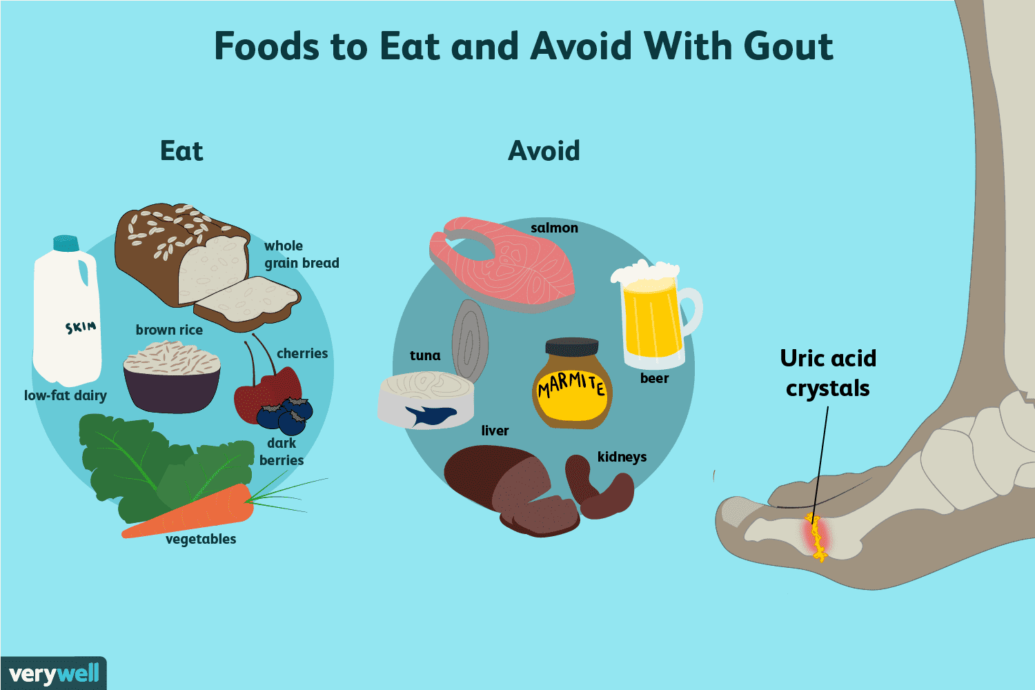 Learn What Foods to Eat to Reduce Gout Symptoms