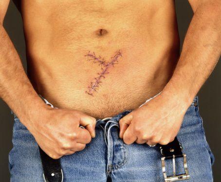 Abdominal surgery incision
