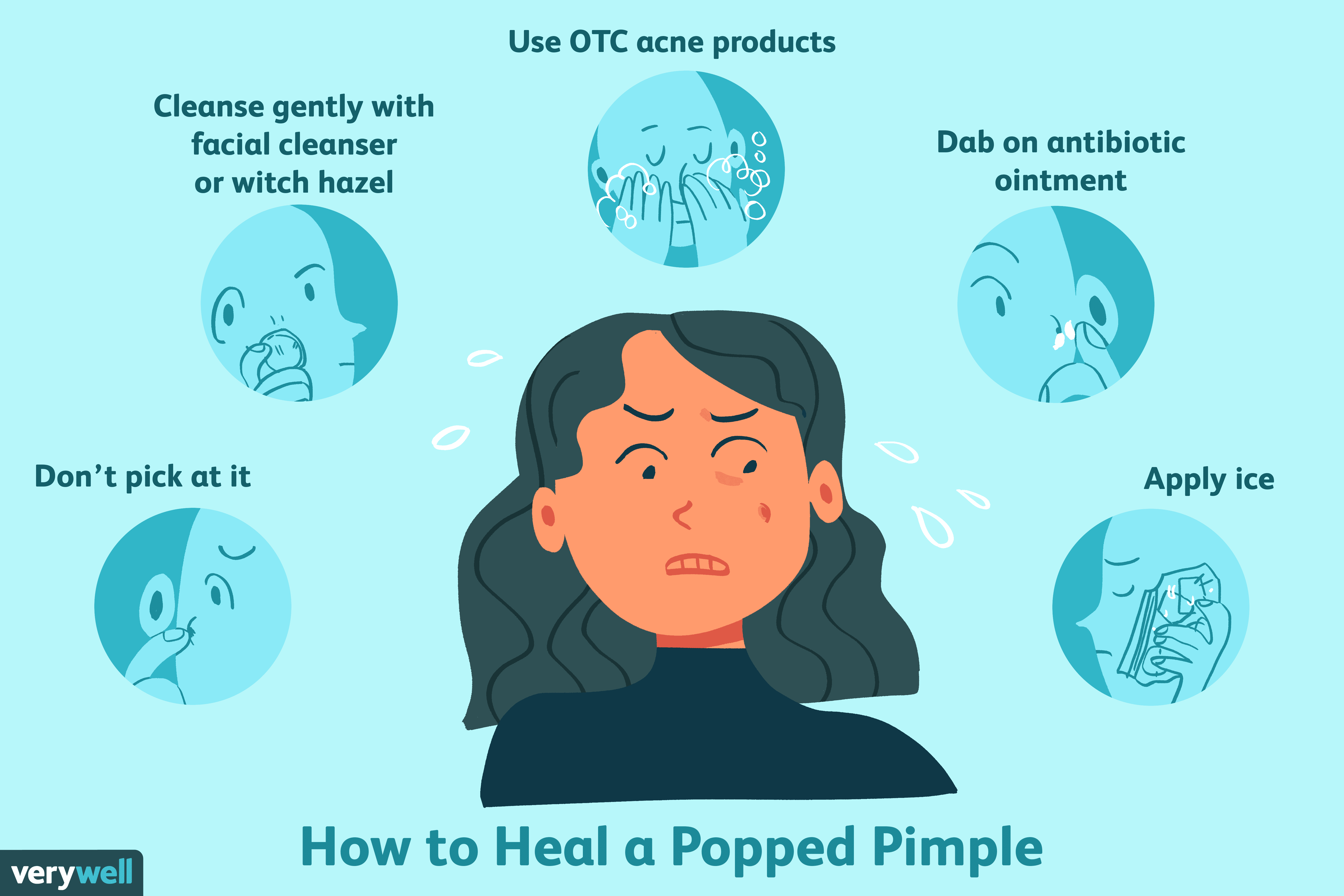 How to Heal a Popped Pimple Scab