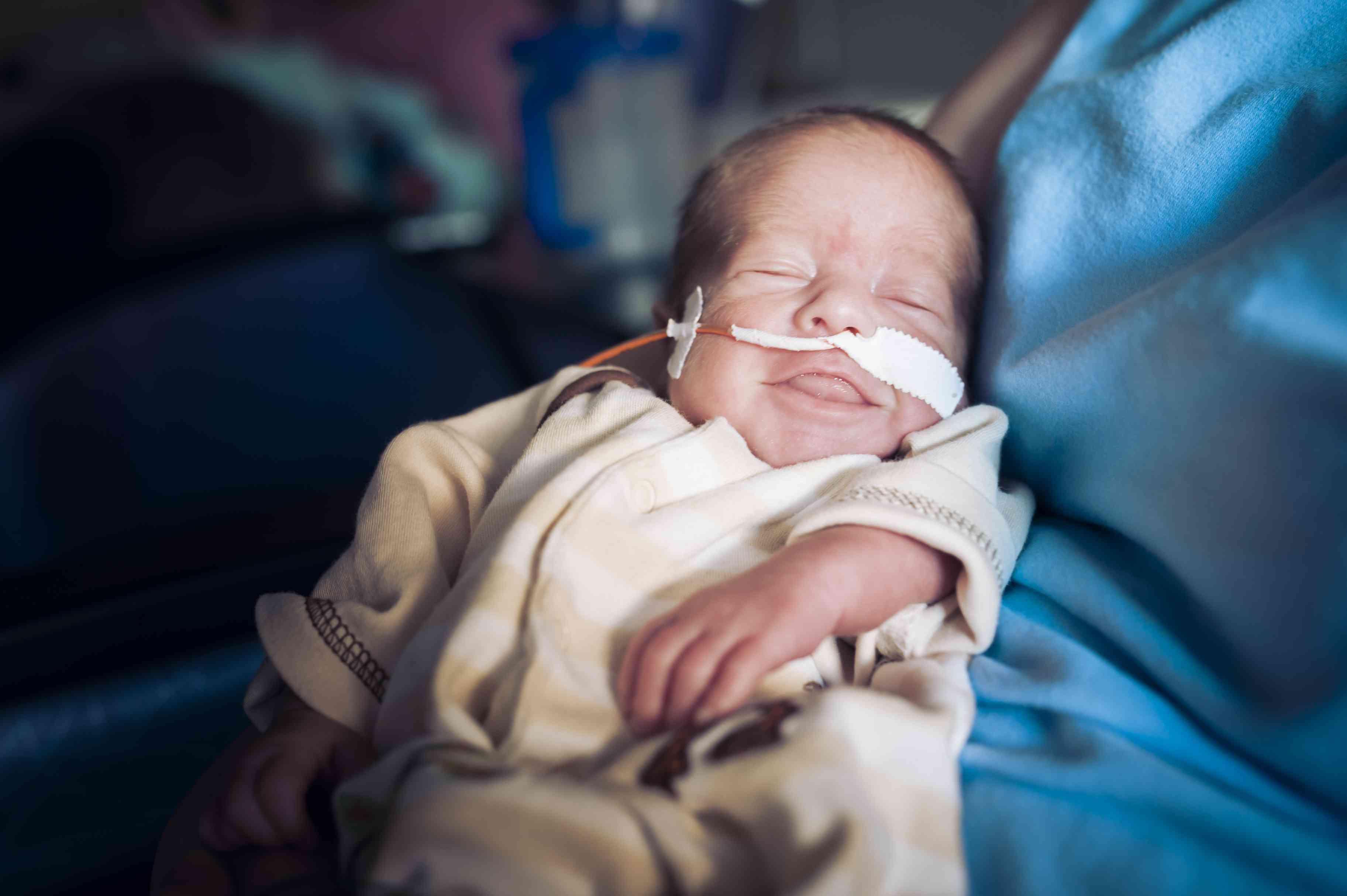 newborn-jejunal-atresia