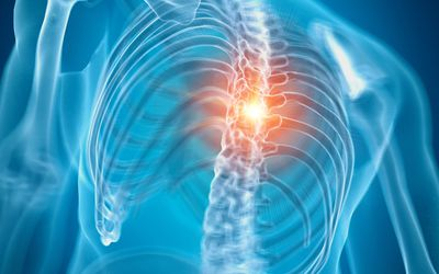Shooting Leg Pains Linked to Lumbar Spine Problems