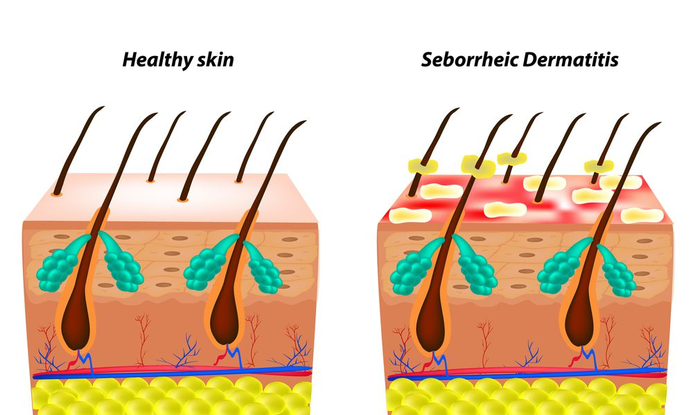 What Seborrheic Dermatitis Looks and Feels Like