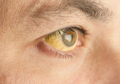 Close up of jaundiced eye