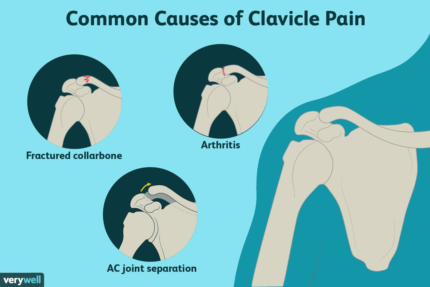 Collarbone Pain: Causes, Diagnosis, and Treatment
