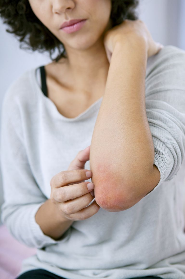 Injectable Drug for Moderate to Severe Eczema